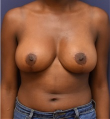 Breast Reduction After Photo by Richard Reish, MD, FACS; New York, NY - Case 32845