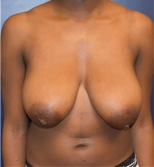 Breast Reduction Before Photo by Richard Reish, MD, FACS; New York, NY - Case 32845