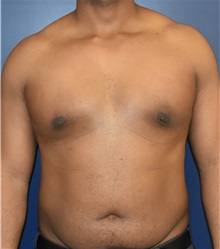 Male Breast Reduction After Photo by Richard Reish, MD, FACS; New York, NY - Case 32850