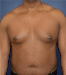 Male Breast Reduction Before Photo by Richard Reish, MD, FACS; New York, NY - Case 32850