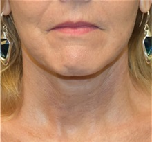 Facelift After Photo by Richard Reish, MD, FACS; New York, NY - Case 32851