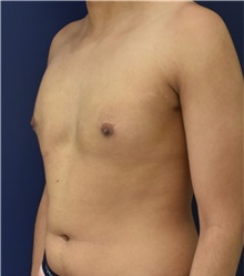 Male Breast Reduction After Photo by Richard Reish, MD, FACS; New York, NY - Case 32875