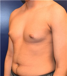Male Breast Reduction Before Photo by Richard Reish, MD, FACS; New York, NY - Case 32875