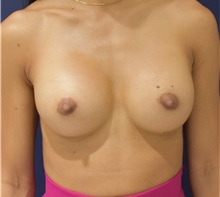 Breast Augmentation After Photo by Richard Reish, MD, FACS; New York, NY - Case 32876