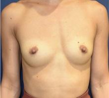 Breast Augmentation Before Photo by Richard Reish, MD, FACS; New York, NY - Case 32876