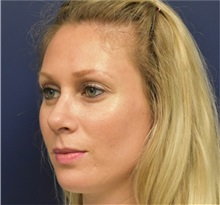 Rhinoplasty After Photo by Richard Reish, MD, FACS; New York, NY - Case 32877
