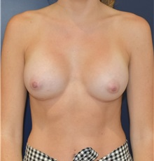 Breast Augmentation After Photo by Richard Reish, MD, FACS; New York, NY - Case 32878