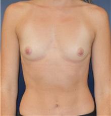 Breast Augmentation Before Photo by Richard Reish, MD, FACS; New York, NY - Case 32878