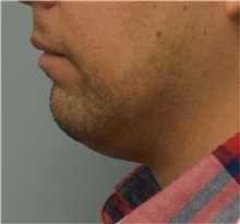 Chin Augmentation Before Photo by Richard Reish, MD, FACS; New York, NY - Case 32881
