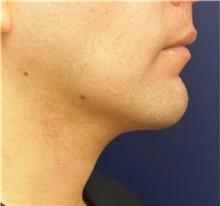 Chin Augmentation After Photo by Richard Reish, MD, FACS; New York, NY - Case 32881