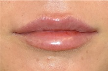 Lip Augmentation / Enhancement After Photo by Richard Reish, MD, FACS; New York, NY - Case 32883