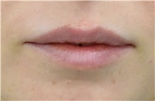 Lip Augmentation / Enhancement Before Photo by Richard Reish, MD, FACS; New York, NY - Case 32883
