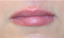 Lip Augmentation / Enhancement After Photo by Richard Reish, MD, FACS; New York, NY - Case 32885