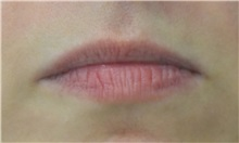 Lip Augmentation / Enhancement Before Photo by Richard Reish, MD, FACS; New York, NY - Case 32885