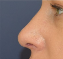 Rhinoplasty After Photo by Richard Reish, MD, FACS; New York, NY - Case 32887