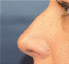 Rhinoplasty Before Photo by Richard Reish, MD, FACS; New York, NY - Case 32887