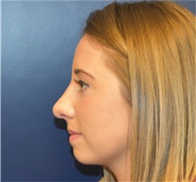 Rhinoplasty After Photo by Richard Reish, MD, FACS; New York, NY - Case 32888