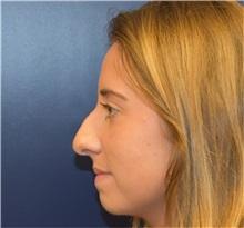 Rhinoplasty Before Photo by Richard Reish, MD, FACS; New York, NY - Case 32888