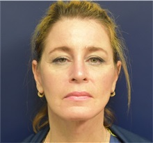 Facelift After Photo by Richard Reish, MD, FACS; New York, NY - Case 32891