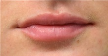 Lip Augmentation / Enhancement After Photo by Richard Reish, MD, FACS; New York, NY - Case 32892