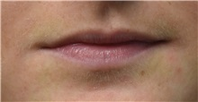Lip Augmentation / Enhancement Before Photo by Richard Reish, MD, FACS; New York, NY - Case 32892