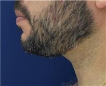 Chin Augmentation After Photo by Richard Reish, MD, FACS; New York, NY - Case 32893