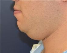 Chin Augmentation Before Photo by Richard Reish, MD, FACS; New York, NY - Case 32893