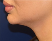 Chin Augmentation Before Photo by Richard Reish, MD, FACS; New York, NY - Case 32896