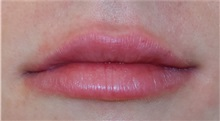 Lip Augmentation / Enhancement After Photo by Richard Reish, MD, FACS; New York, NY - Case 32898