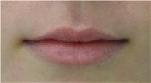 Lip Augmentation / Enhancement Before Photo by Richard Reish, MD, FACS; New York, NY - Case 32898