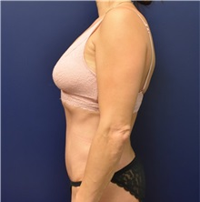 Tummy Tuck After Photo by Richard Reish, MD, FACS; New York, NY - Case 32925