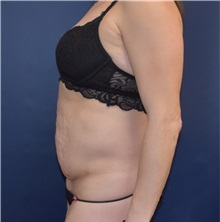 Tummy Tuck Before Photo by Richard Reish, MD, FACS; New York, NY - Case 32925