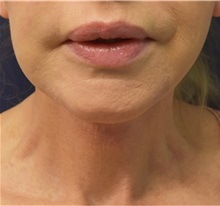 Facelift After Photo by Richard Reish, MD, FACS; New York, NY - Case 32927