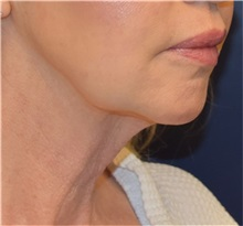 Facelift Before Photo by Richard Reish, MD, FACS; New York, NY - Case 32927