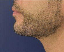 Chin Augmentation After Photo by Richard Reish, MD, FACS; New York, NY - Case 32930