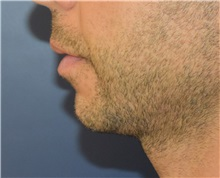 Chin Augmentation Before Photo by Richard Reish, MD, FACS; New York, NY - Case 32930