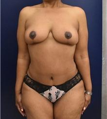 Tummy Tuck After Photo by Richard Reish, MD, FACS; New York, NY - Case 32931