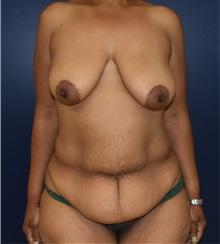 Tummy Tuck Before Photo by Richard Reish, MD, FACS; New York, NY - Case 32931