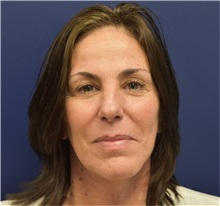Facelift After Photo by Richard Reish, MD, FACS; New York, NY - Case 32933