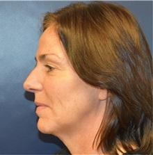 Facelift Before Photo by Richard Reish, MD, FACS; New York, NY - Case 32933