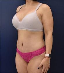 Tummy Tuck After Photo by Richard Reish, MD, FACS; New York, NY - Case 32936