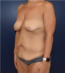 Tummy Tuck Before Photo by Richard Reish, MD, FACS; New York, NY - Case 32936