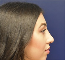 Rhinoplasty After Photo by Richard Reish, MD, FACS; New York, NY - Case 32939