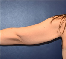 Arm Lift Before Photo by Richard Reish, MD, FACS; New York, NY - Case 32940