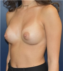 Breast Augmentation After Photo by Richard Reish, MD, FACS; New York, NY - Case 32941