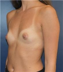 Breast Augmentation Before Photo by Richard Reish, MD, FACS; New York, NY - Case 32941