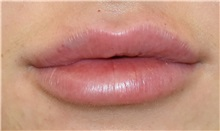 Lip Augmentation / Enhancement After Photo by Richard Reish, MD, FACS; New York, NY - Case 32943