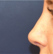 Rhinoplasty After Photo by Richard Reish, MD, FACS; New York, NY - Case 32945