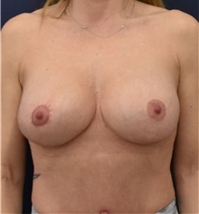 Breast Augmentation After Photo by Richard Reish, MD, FACS; New York, NY - Case 33050
