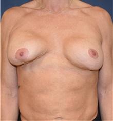 Breast Augmentation Before Photo by Richard Reish, MD, FACS; New York, NY - Case 33050